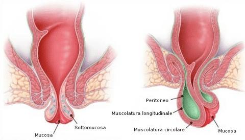 Le emorroidi dopo un clistere sono uscite