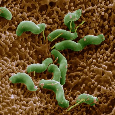 helicobacter, helicobacter pylori, campylobacter pylori